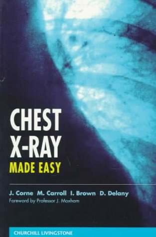 9780443051944: Chest X-Ray Made Easy, 1e