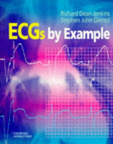9780443056970: ECGs by Example