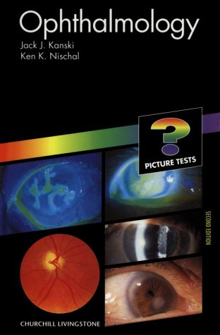 9780443060373: Ophthalmology: Picture Tests, 2e