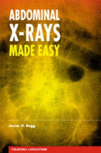 9780443062056: Abdominal X-Rays Made Easy