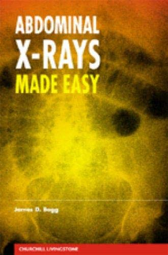 9780443062063: BEGG ABDOMINAL X-RAY MADE EASY 1E ISE