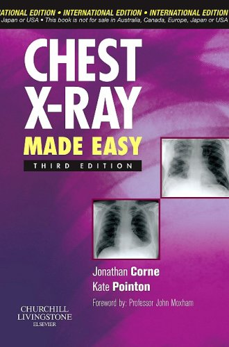 9780443067358: Chest X-Ray Made Easy