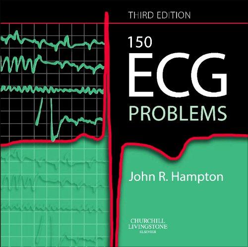 150 ECG Problems (Third Edition): John R. Hampton