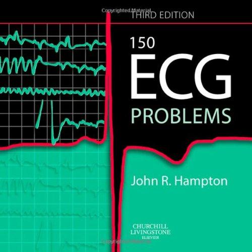 9780443068232: 150 ECG Problems, 3e