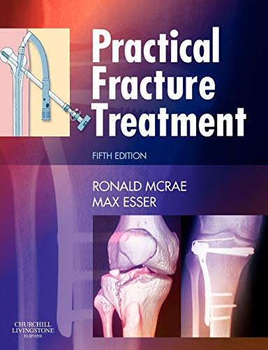 9780443068768: Practical Fracture Treatment