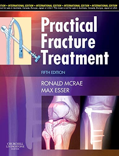 9780443068775: Practical Fracture Treatment