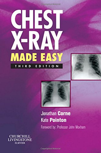 9780443069222: Chest X-Ray Made Easy, 3e