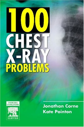 9780443070129: 100 Chest X-Ray Problems, 1e