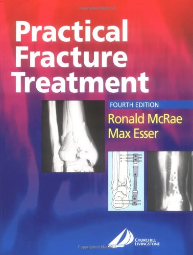 9780443070389: Practical Fracture Treatment, 4th Edition
