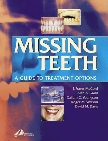 9780443071539: Missing Teeth: A Guide to Treatment Options, 1e