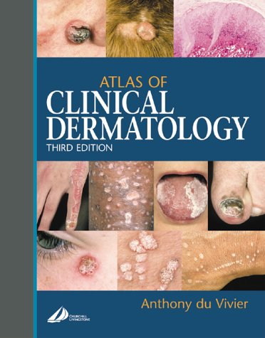 9780443072208: Atlas of Clinical Dermatology, 3e
