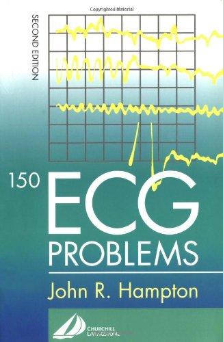 150 ECG Problems, 2e: John R. Hampton DM MA DPhil FRCP FFPM FESC