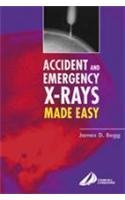 Accident and Emergency X-rays Made Easy: James D. Begg