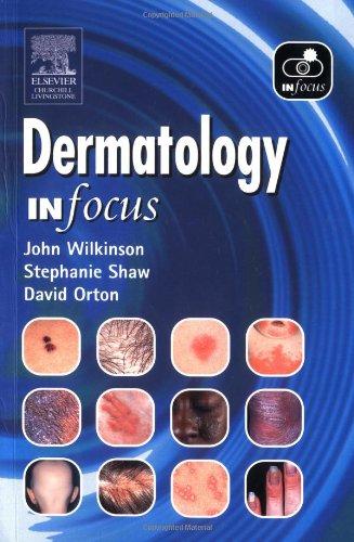 9780443073762: Dermatology In Focus, 1e