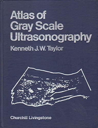9780443080012: Atlas of Gray Scale Ultrasonography