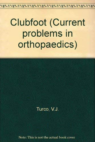 9780443080333: Club Foot: Current Problems Orthopedic (Current problems in orthopaedics)