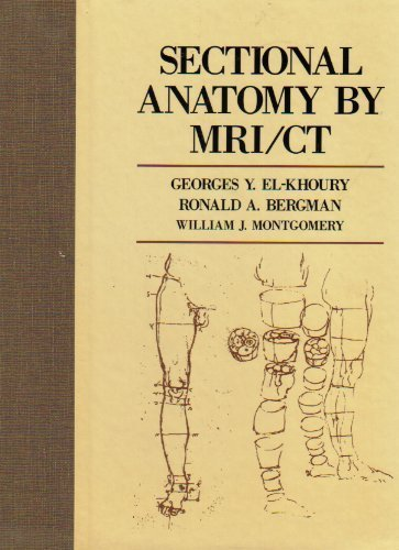 9780443085437: Sectional Anatomy by Mri/Ct - AbeBooks - Georges Y ...