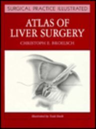 9780443087332: Atlas of Liver Surgery (Surgical Practice Illustrated)
