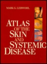 9780443087394: Atlas of the Skin and Systemic Disease, 1e