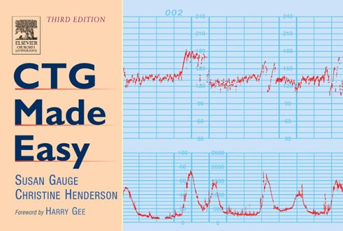 CTG Made Easy (Third Edition): Susan Gauge,Christine Henderson