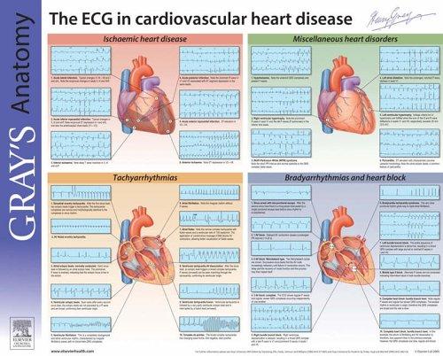 9780443102295: Understanding the ECG: Gray's Anatomy Poster Series, 1e