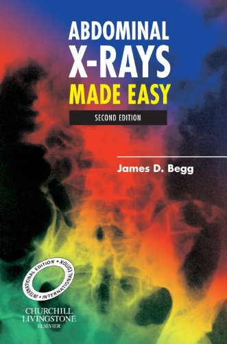 9780443102561: Abdominal X-Rays Made Easy, International Edition, Second Edition