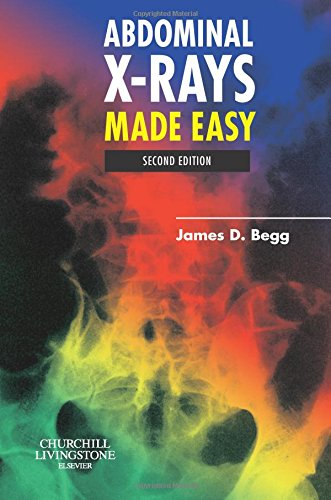 9780443102578: Abdominal X-Rays Made Easy, 2e