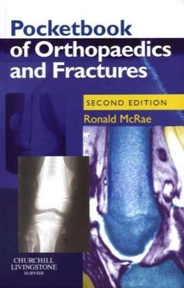 9780443102721: Pocketbook of Orthopaedics and Fractures, 2e (Churchill Pocketbooks)