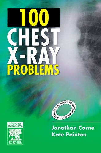 9780443103773: 100 Chest X-Ray Problems, International Edition