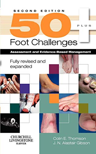 9780443104022: 50+ Foot Challenges: Assessment and Evidence-Based Management, 2e