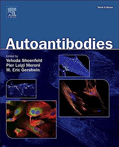 9780444563781: Autoantibodies