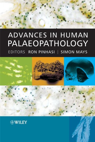 9780470036020: Advances in Human Palaeopathology