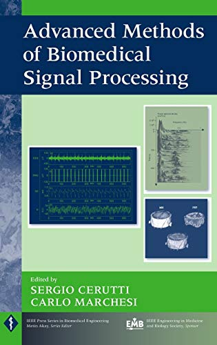 9780470422144: Advanced Methods of Biomedical Signal Processing