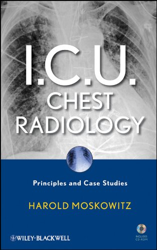 9780470450345: I.C.U. Chest Radiology: Principles and Case Studies