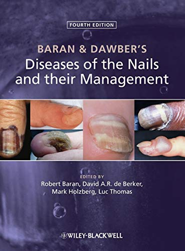 9780470657355: Baran and Dawber's Diseases of the Nails and their Management