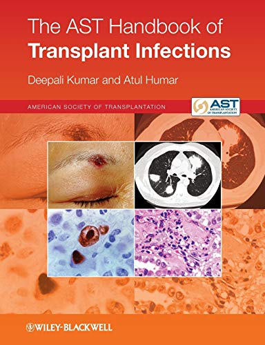 9780470658277: The Ast Handbook of Transplant Infections