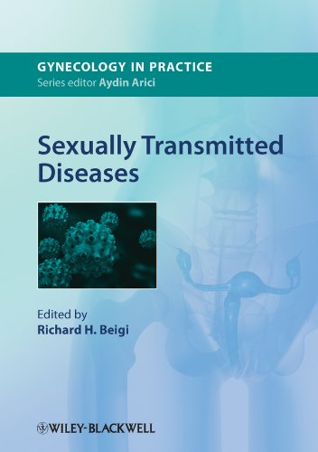 9780470658352: Sexually Transmitted Diseases