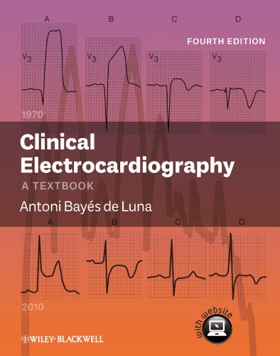 9780470658598: Clinical Electrocardiography