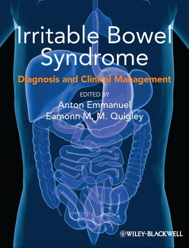 9780470659489: Irritable Bowel Syndrome: Diagnosis and Clinical Management