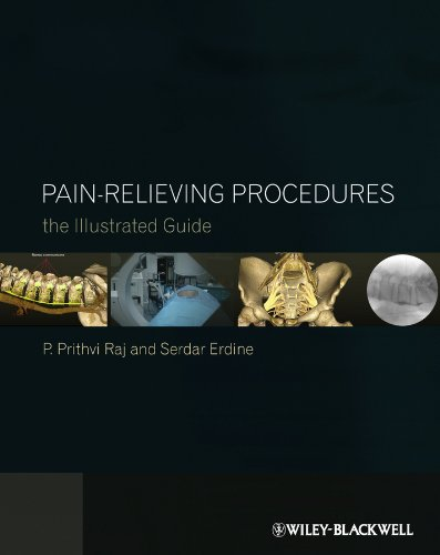 9780470670385: Pain-Relieving Procedures: The Illustrated Guide