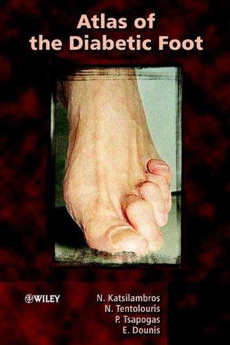 9780470861370: Atlas of the Diabetic Foot