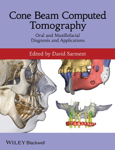 9780470961407: Cone Beam Computed Tomography: Oral and Maxillofacial Diagnosis and Applications
