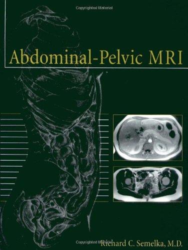 9780471414766: Abdominal-Plevic MRI