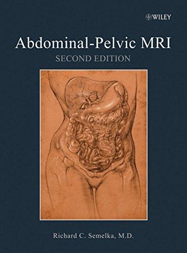 9780471692737: Abdominal-Pelvic MRI