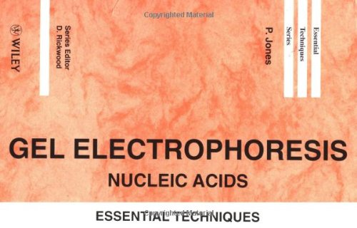 9780471960430: Gel Electrophoresis: Nucleic Acids: Essential Techniques