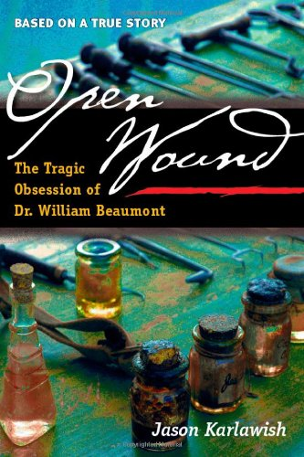Open Wound: The Tragic Obsession of Dr. William Beaumont: Karlawish, Jason