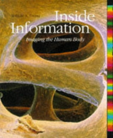 9780500278819: INSIDE INFORMATION: IMAGING THE HUMAN BODY