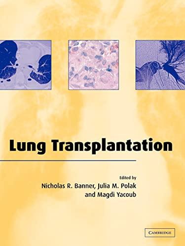 9780521036771: Lung Transplantation