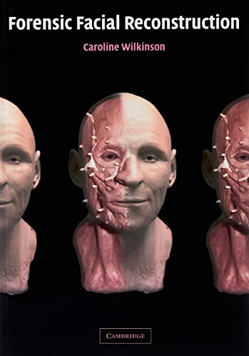 9780521090124: Forensic Facial Reconstruction