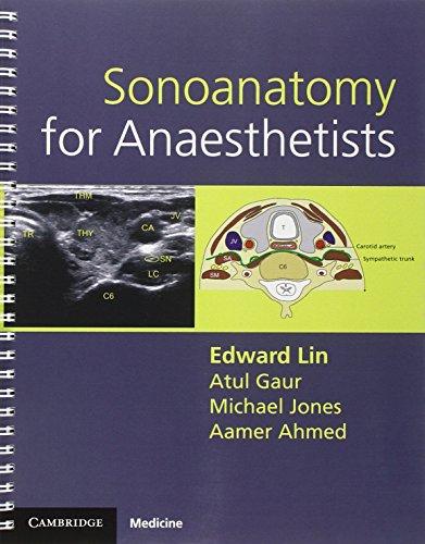 9780521106665: Sonoanatomy for Anaesthetists